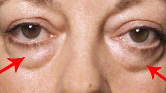 Cách xóa bọng mắt từ nguyên liệu tự nhiên