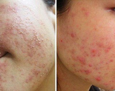 Cách phục hồi da sau khi dùng kem trộn: giải pháp chữa cháy cho làn da