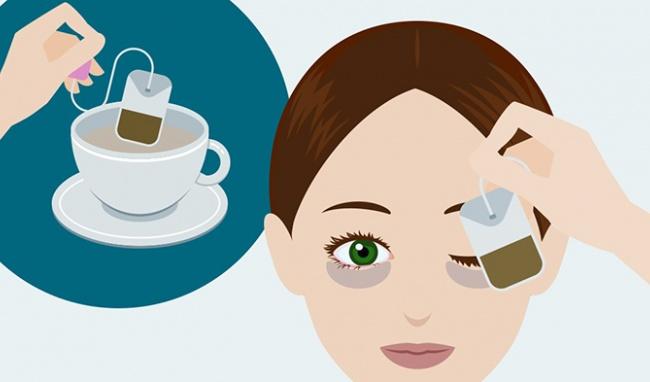 5 cách loại bỏ bọng mắt đơn giản và hữu hiệu 1