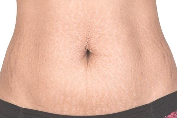 Căng da bụng bị chùng sau sinh dễ hay khó? 1