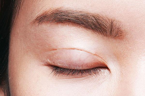 Cắt mí mắt bao lâu thì lành? 2