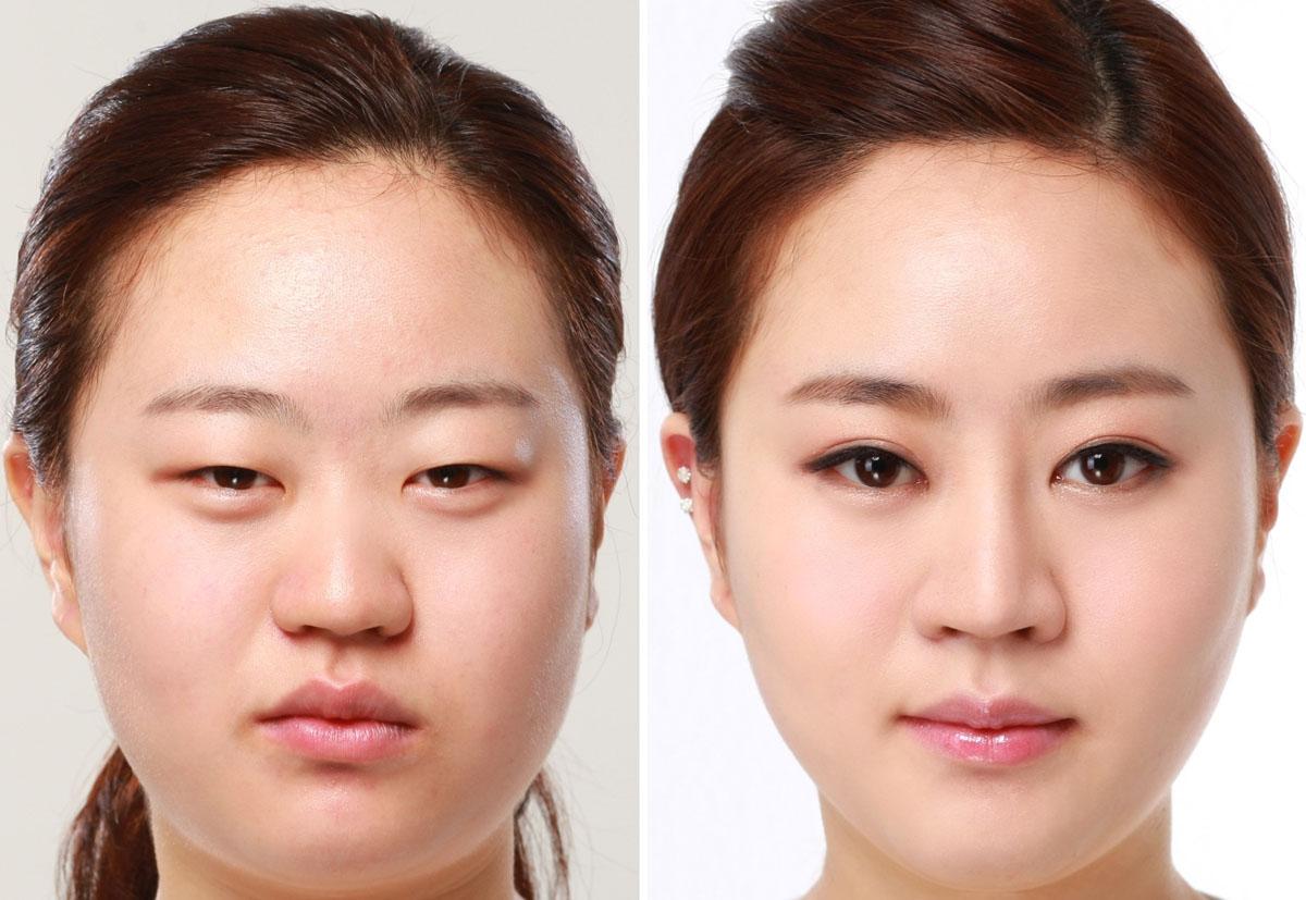 Trào lưu cắt mắt Hàn Quốc của giới trẻ ngày nay