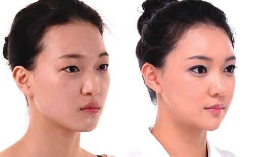 Cấy ghép mỡ vào mặt giúp trẻ hóa da 1
