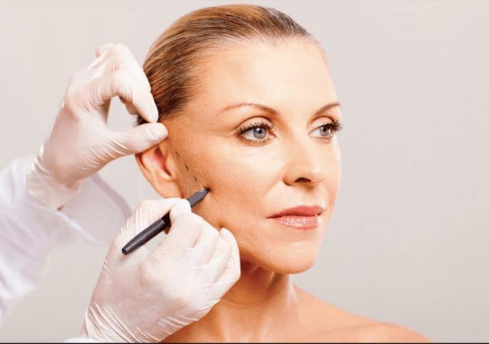 Nên đi căng da mặt nội soi ở đâu để có được kết quả tốt nhất?