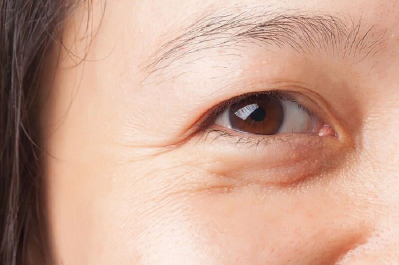 chữa hốc mắt sâu tại nhà