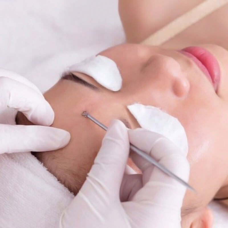 nan-mun-o-spa-co-tot-khong