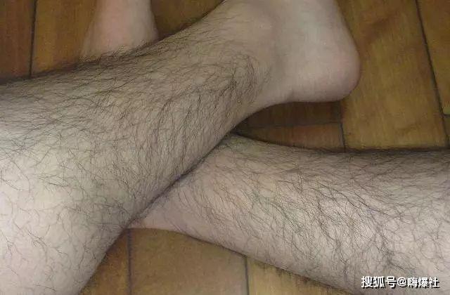 Wax lông chân có hại không?