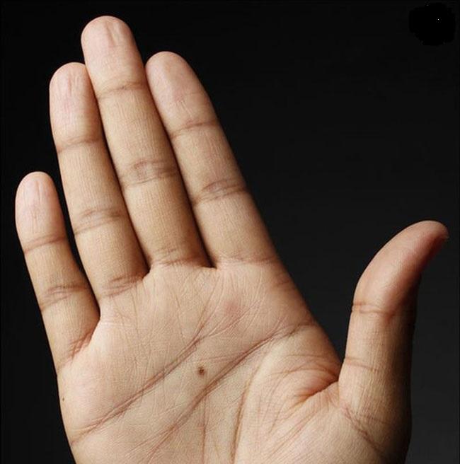 Nốt ruồi son ở lòng bàn tay nam, nữ mang ý nghĩa gì?