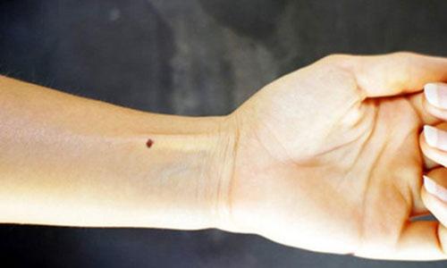 Vận mệnh nốt ruồi ở cánh tay trái, phải của đàn ông, phụ nữ