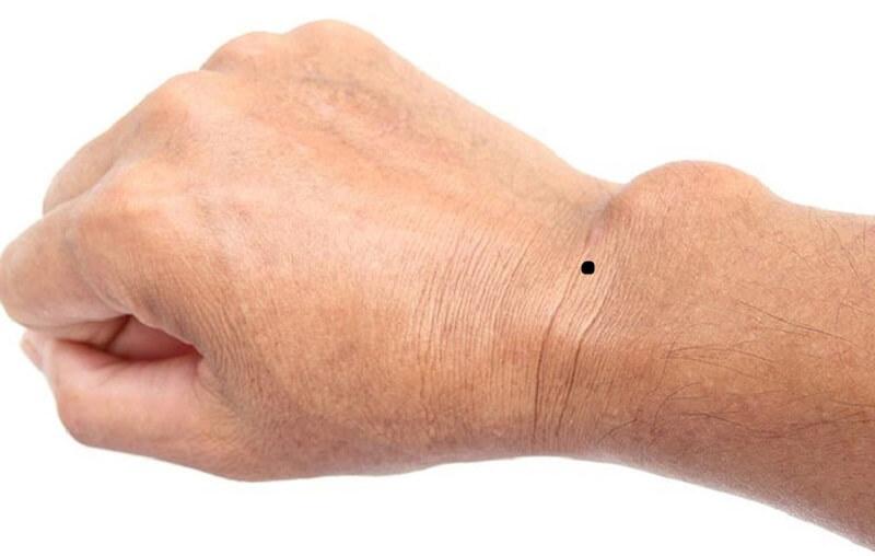 Bói 7 vị trí nốt ruồi ở cổ tay trái, phải chuẩn xác nhất!