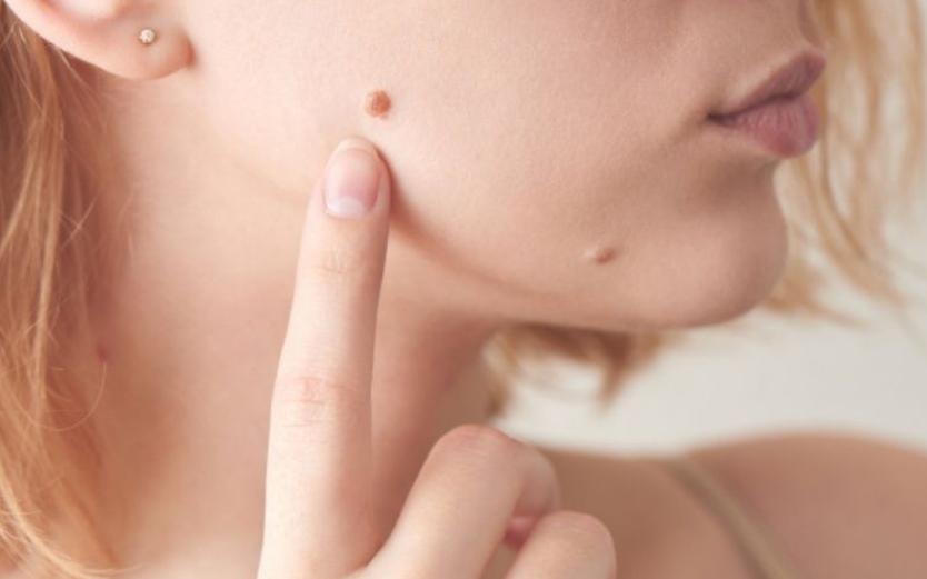 Tẩy nốt ruồi có thay đổi được vận mệnh không?