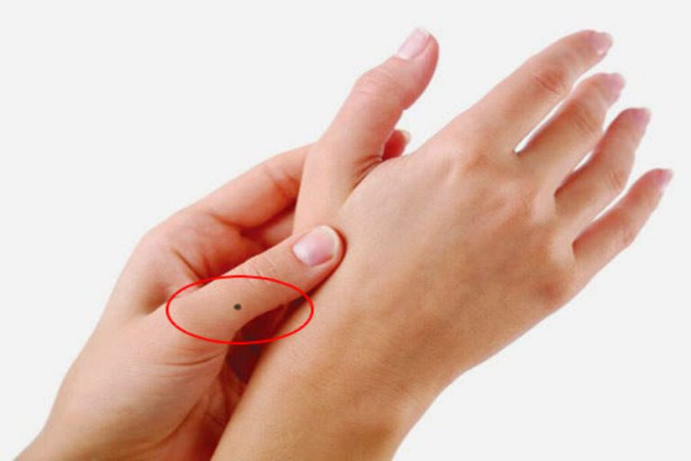 Nốt ruồi ở ngón tay nam, nữ tiết lộ điều gì? Có nên xóa không?