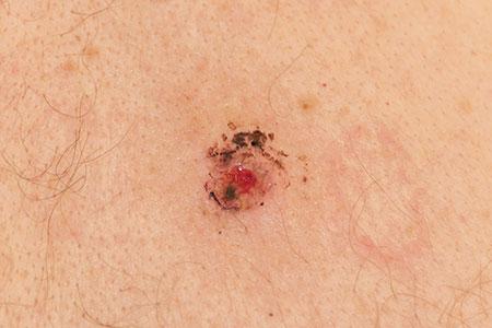Có nên tẩy nốt ruồi cho trẻ em không? Chuyên gia giải đáp