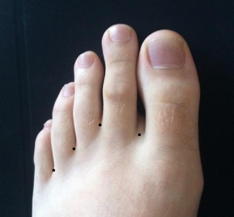 Nốt ruồi ở kẽ ngón chân