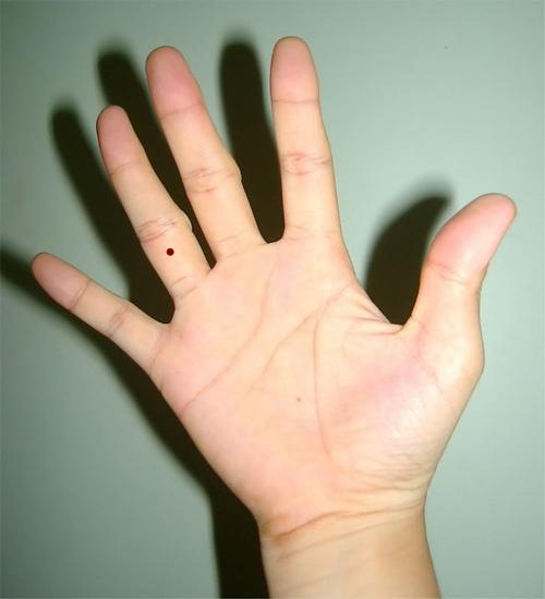 Nốt ruồi ở ngón tay áp út nam, nữ lận đận tình duyên?